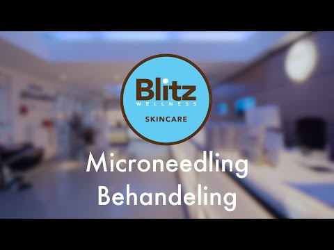 Microneedling by Blitz  Welness & Skincare