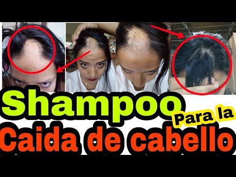 Shampoo de biotina y colageno casero – shampoo para la caida de cabello – alopecia areata
