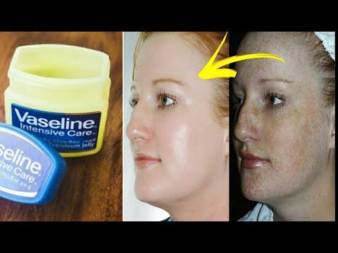 Remove Wrinkles 3 in 1 : Forehead Wrinkles Eye and Smile Wrinkles Anti-Ageing In 3 Days
