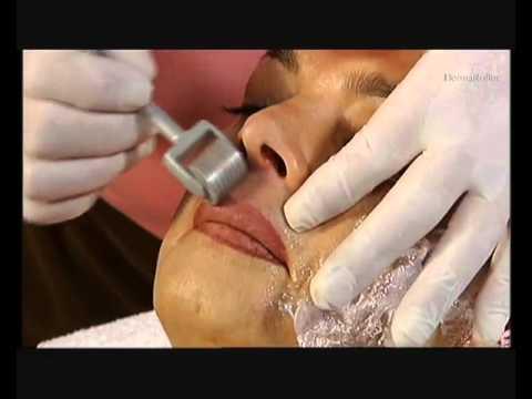 Dermaroller Collagen Induction Therapy