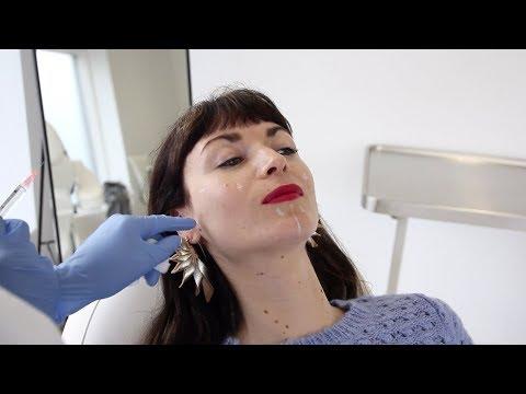 De Profhilo behandeling – injectable voor huidverbetering
