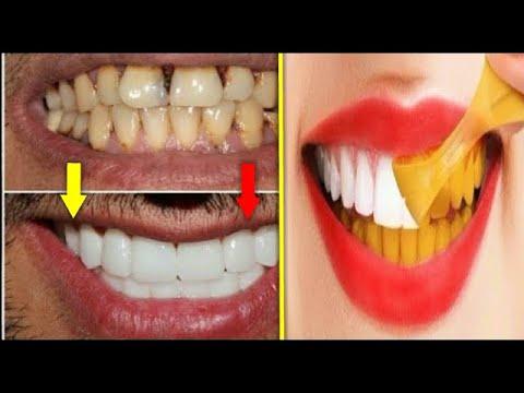 Tek Malzeme İle Evde Doğal Diş Beyazlatma | Tartar Temizliği Ve Diş Lekesine  Hızlı Çözüm