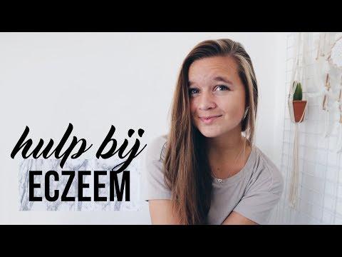 MIJN ERVARINGEN EN TIPS BIJ ECZEEM   Samantha van der Leest