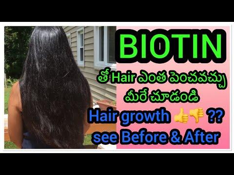 #Biotin for Hair growth Review yes or No / నా బయోటిన్ జర్నీ/జుట్టు పెరుగుతుందా? Side effects ఏంటి?