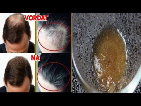Natuurlijke remedie tegen stopt haaruitval en dikker haar krijgen in 2 tot 3 weken!