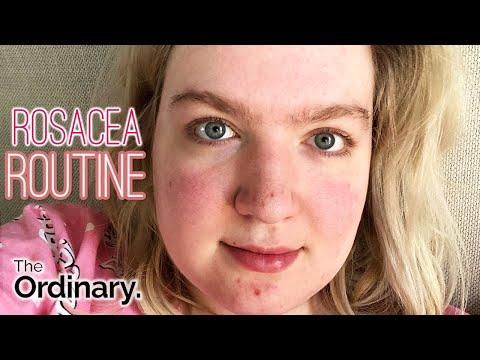 Mijn rosacea huidverzorgingsroutine + Gestopt met make-up dragen (het resultaat) | Vera Camilla