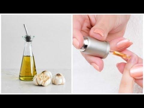 Je nagels versterken met zelfgemaakte lotion