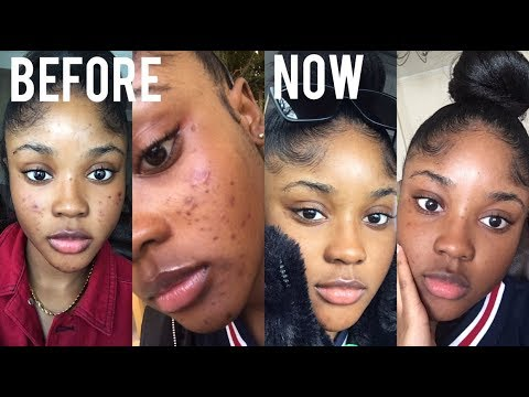 HOW I CLEARED UP MY ACNE & SCARS QUICKLY! SKINCARE  KAISERCOBY