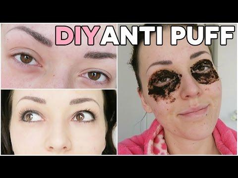 DIY truc ❤ tegen puffy ogen | Beautygloss