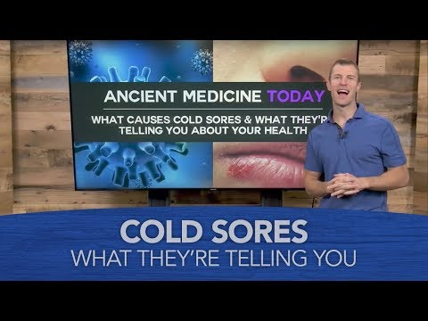 What Causes Cold Sores & What They're Telling You About Your Health