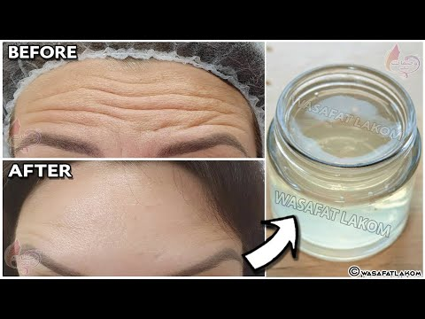 unbelievable,🌱A magic ingredient to remove mouth wrinkles, under eye wrinkles and forehead wrinkles